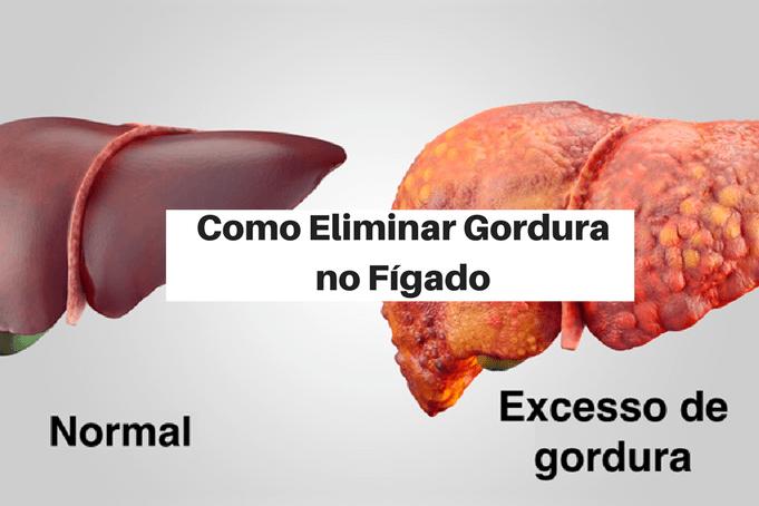 O que é e como eliminar gordura no fígado em 7 passos